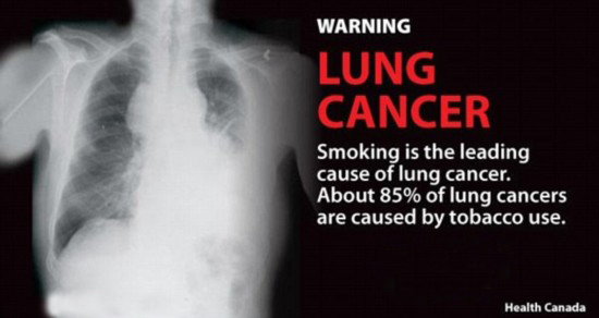 Lung cancer.jpg